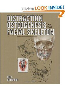 Distraction Osteogenesis of the Facial Skeleton William H. Bell